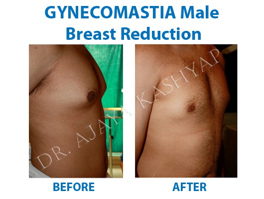 Male Breast (Gynecomastia) surgery in delhi