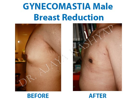 male chest surgery