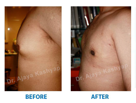 cost of gynecomastia surgery in india