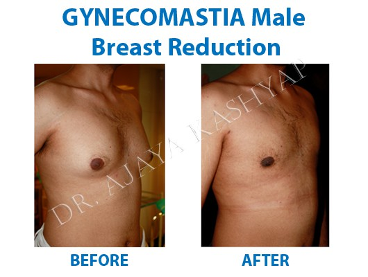 low cost breast redution surgery in delhi